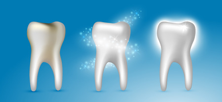Beautiful realistic dentist vector set of teeth cleansing process with decayed, cleansed and white shiny teeth on blue background.