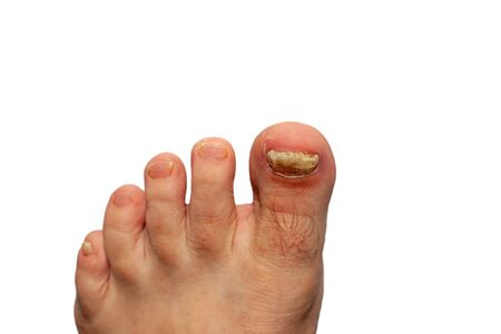 Fungus on toenails. Toenails destroyed. Toenail plate is affected by fungus. Nail plates of toes are disfigured. Isolated.