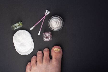 Flat lay. Fungus on the toenail. Tools for the care of affected nails. Cream in a jar, cotton pads and cotton buds, bottles of liquid. Dark background.