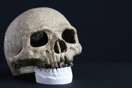 plaster mould: Human skull and gypsum dental model on dark background