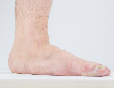 itraconazole: Men with signs of flatfoot foot and nail fungus. Foot Diseases. Fungal disease.