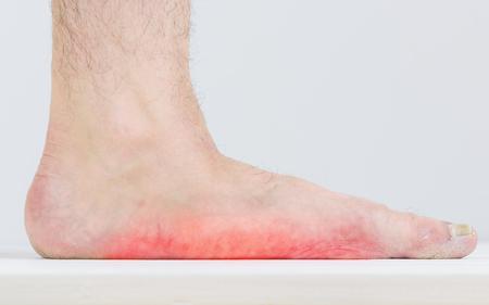 평발 족과 곰팡이 흔적이있는 남성. 발 질병. 곰팡이 병. 스톡 콘텐츠