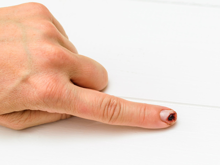 Female hand with cut finger on a white wooden table. Damage to the hand in a domestic situation.