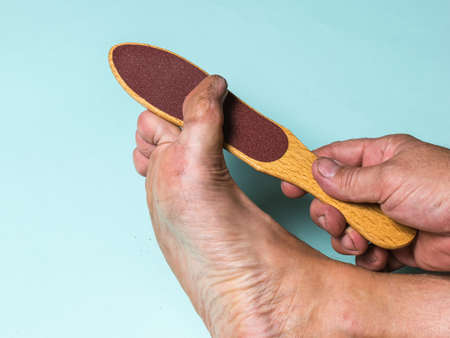 The man cleans the rough skin from the right big toe. Treatment of leg skin. Reklamní fotografie