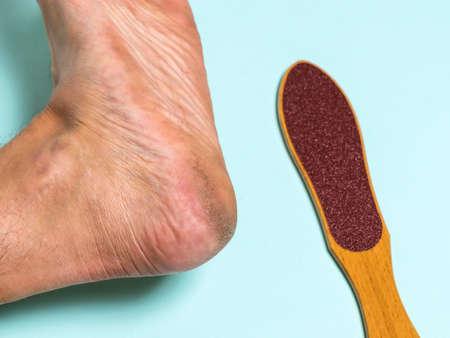 Brush for removing rough skin and the man's left leg. Treatment of leg skin.