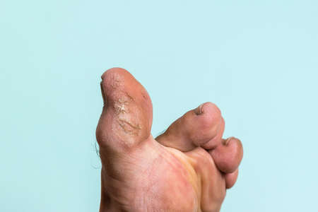 The big toe of a man's foot with signs of skin diseases. Treatment of leg skin.