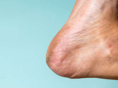 Skin diseases on the heel of a man on a blue background. Treatment of leg skin. Stock Photo