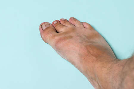 A man's bare right foot on a blue background. Treatment of leg skin.