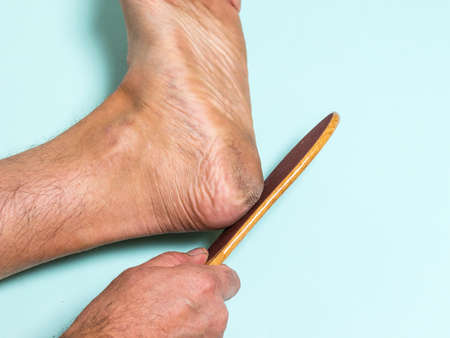 The man removes the roughened skin from the heel with a manual device. Treatment of leg skin.