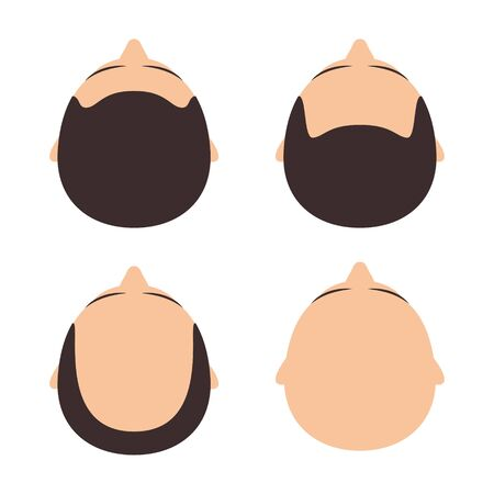 Vector figures with different types of hair - baldness. Isolated on white background Çizim