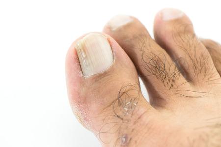 toenail: fungi at toenail Stock Photo