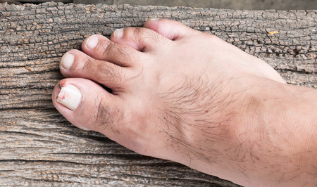 toenail: Broken toenail on wood background Stock Photo