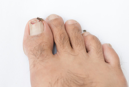 toenail: Broken toenail on white background Stock Photo