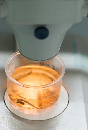 plancton: plancton en vaso de plástico en el microscopio. Foto de archivo