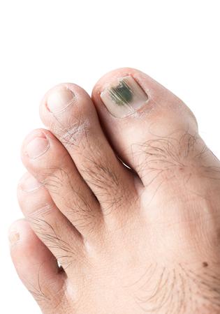 fungi on toenail isolated on white