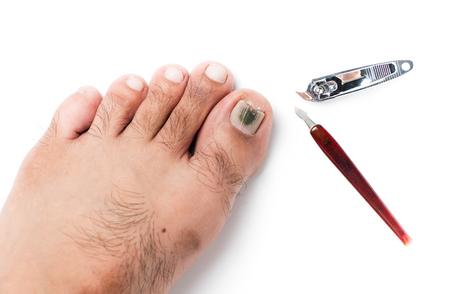 toenail fungus: fungi on toenail and nail clippers isolated on white