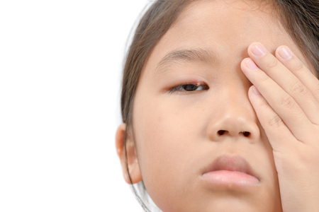 Close up of asian little girl one eye infection isolated on white background, eyelid abscess, stye, hordeolum. Concept of health, disease Stock Photo