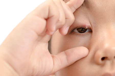 Close up of asian little girl one eye infection isolated on white background, eyelid abscess, stye, hordeolum. Concept of health, disease. Stock Photo