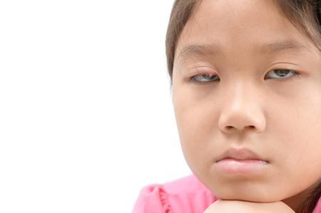 Sad girl one eye infection isolated on white background, eyelid abscess, stye, hordeolum. Concept of health, disease. Stock Photo