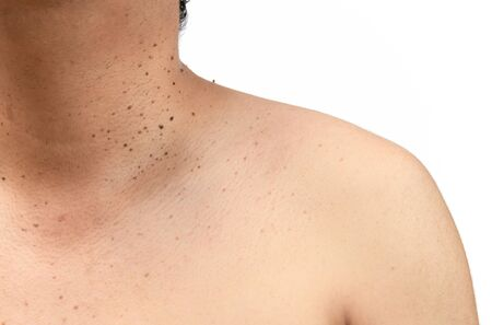 Closed up the skin tags or Seborrheic Keratosis on neck man isolated on white background.Health care concept.