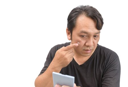 Middle-aged asian man applying cream onto face with melasma or blemish and brown spots Stock Photo