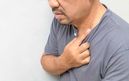 A middle aged man pointed a finger at Skin Tags or Acrochordon on his neck on white background.Skin problems of older people