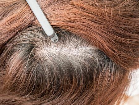 Pista de la mujer con el cabello, pérdida de cabello adelgazamiento Foto de archivo - 61895229