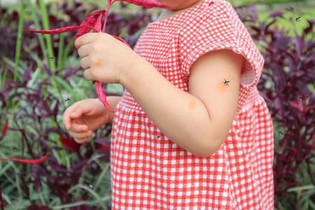 Une jolie petite fille asiatique a une éruption cutanée et une allergie due à une piqûre de moustique et suce du sang tout en jouant à l'extérieur