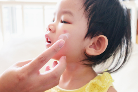 mother applying antiallergic medicine cream at cute asian girl face with skin rash and allergy with red spot cause by mosquito bite