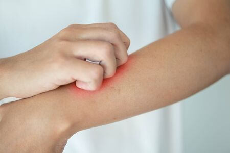 man itching and scratching on arm from itchy dry skin eczema dermatitis Stockfoto