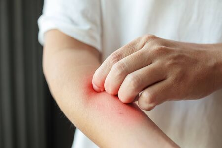 man itching and scratching on arm from insect bite or itchy dry skin eczema dermatitis