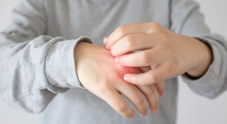 Young asian woman itching and scratching on hand from itchy dry skin eczema dermatitis Stock fotó
