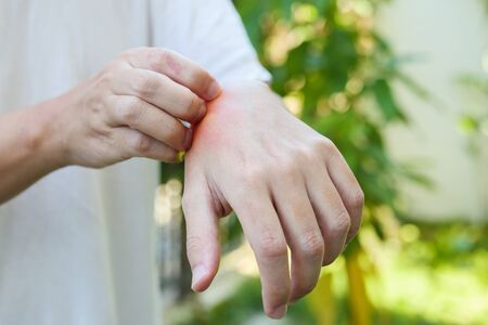 Man itching and scratching on hand from allergy skin rash cause by insect bite outdoor Standard-Bild