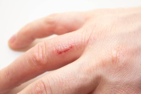 Hand dermatitis. Hand eczema closed on white background. Dermatitis is an inflammation of the skin