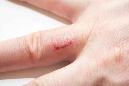 Hand dermatitis. Hand eczema closed on white background. Dermatitis is an inflammation of the skin Banco de Imagens - 148874909