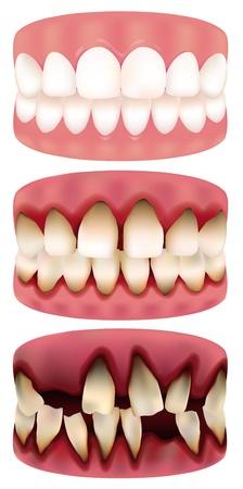 periodontosis