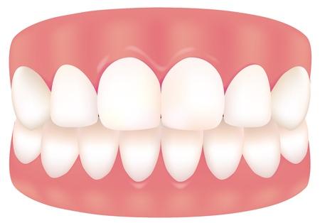 tooth 版權商用圖片 - 15681218