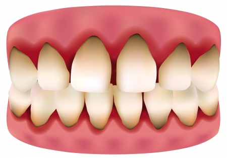 tooth 版權商用圖片 - 15681222