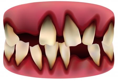 tooth 版權商用圖片 - 15681230