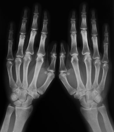 black and white photo of x-ray film with  image of human hands photo