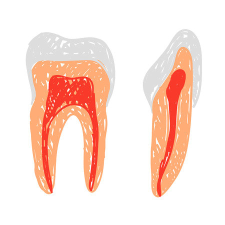 root canal: Illustration of colored teeth  doodle or sketch style