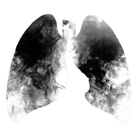 Zigarettenraucherlungen lokalisiert auf weißem Hintergrund mit Kopienraum. Rauchen tötet, Konzept mit Zigarette und Tabak. Rauchverbot mit Zigaretten und Tabak. Standard-Bild