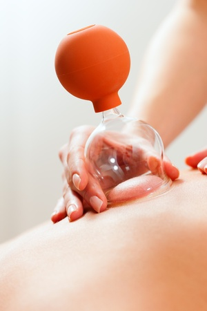 traditional healer: Patient at the physiotherapy - cupping  Stock Photo