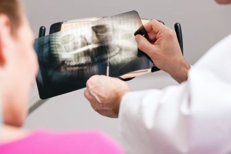 Dentist (only hands to be seen) explaining the details of a x-ray picture to his patient, focus on the picture  photo