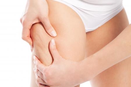 muslos: Celulitis - mujer, probando su piel para temas