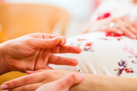 prueba de embarazo: Ajuste Partera aguja de acupuntura mujer embarazada Foto de archivo