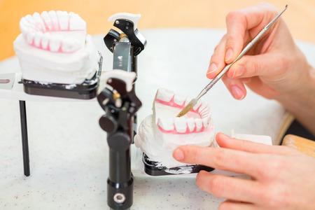 Odontotecnico femminile o ortodontista producendo protesi con impronta