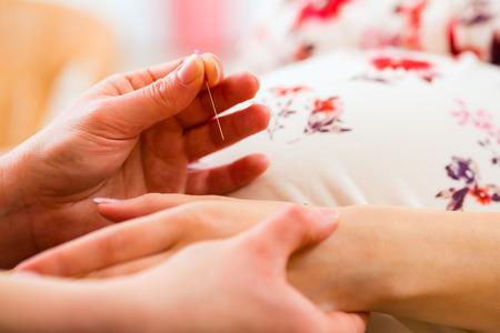 test de grossesse: r�glage de la Sage-femme femme enceinte aiguille d'acupuncture