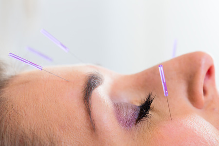 Woman at acupuncture with needles in face receiving alternative treatment