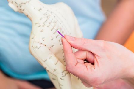 Heilpraktiker Akupunktur erklären Kneifen Nadeln in Modell mit Meridianen gemalt auf